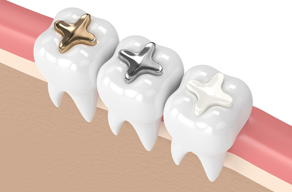 Rendering of teeth with three dental filling materials at Tigard Family Dental in Tigard, OR